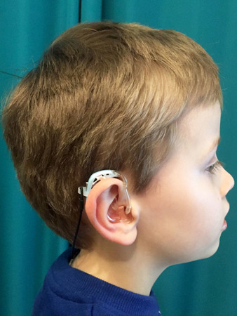 EAR-TO-EAR LINK FOR PROCESSORS / HEARING AIDS