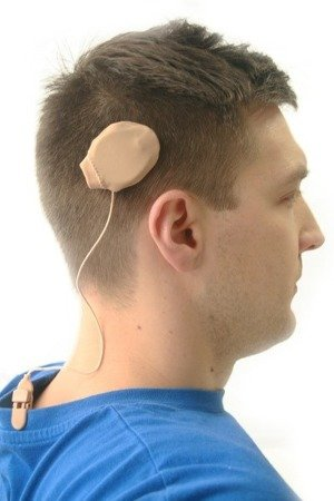 Ear Gear Rondo - Mono Corded cover for one ALL-IN-ONE processor (Rondo, Rondo 2, Samba, Kanso)