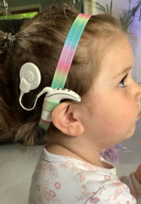 EasyFlex bands for hearing aids and/or speech processors - rainbow