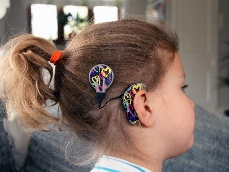 SKIN FOR COCHLEAR NUCLEUS 6 - HEARTS